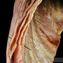 Photo - Muscle layers of thoracic wall