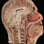 Photo - Sagittal section through the head