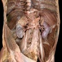 Sympathetic nerves of abdomen - anterolateral view