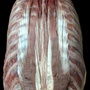 Photo - Erector spinae muscles - layer 5