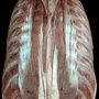 Photo - Erector spinae muscles - layer 4