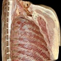 Photo - Internal thoracic wall