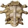 Illustration - A portion of of the occipital bone with the upper 3 cervical vertebrae and their ligaments